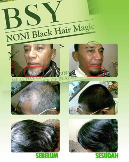 Shampoo-noni-black-hair-magic-mengkudu